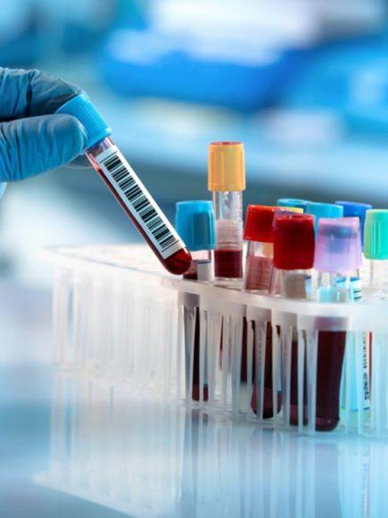 Maestría Internacional en Hematología en Analítica Clínica (Diploma acreditado por Apostilla de la Haya)